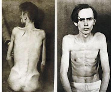 医科院学生用作活体解剖,将他们的胃、心、肺和脑叶通通取出.   半